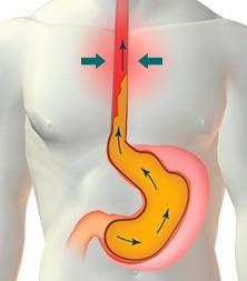 síntomas hernia de hiato