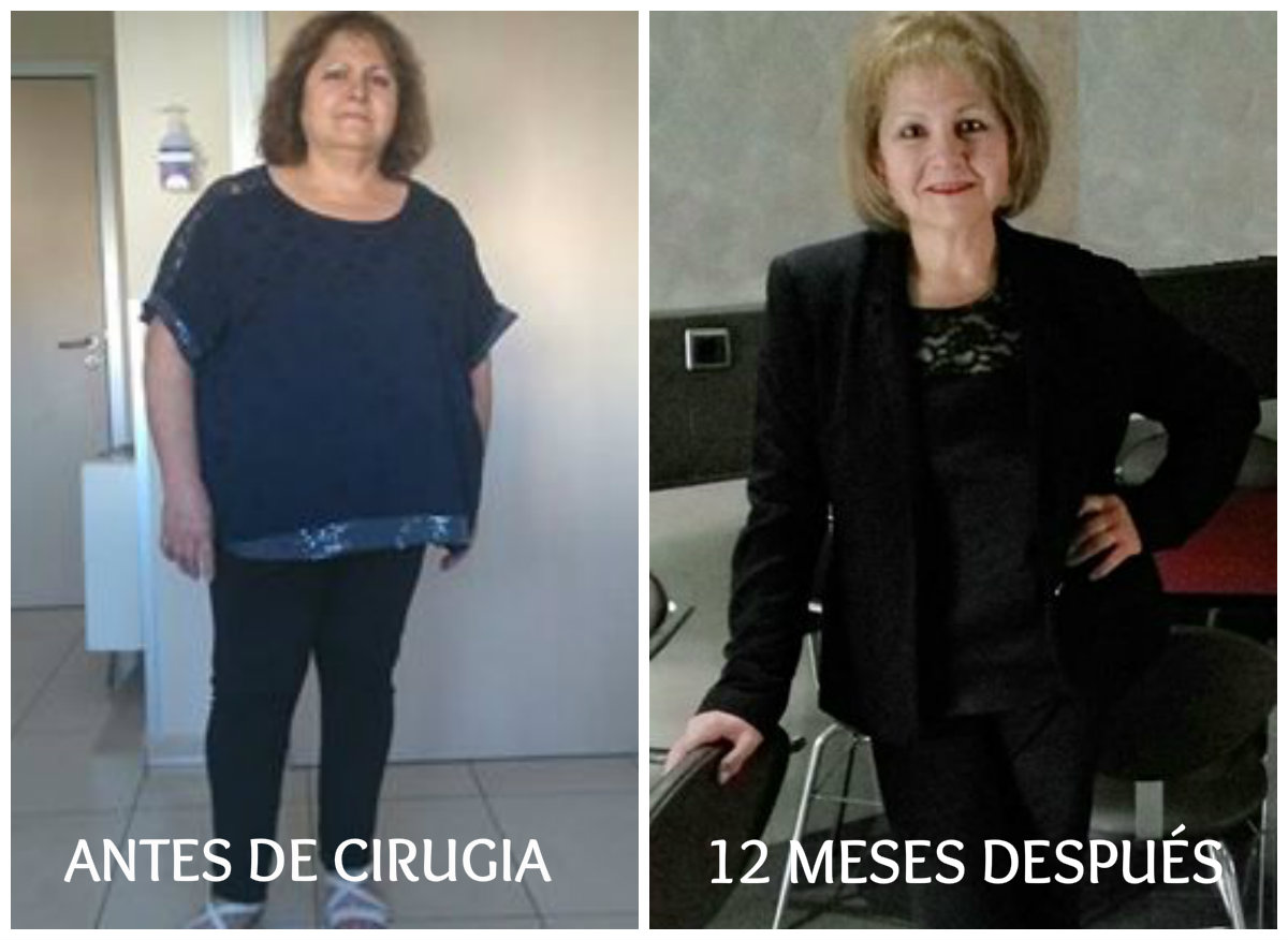 CIRUGIA DIABETES Y OBESIDAD