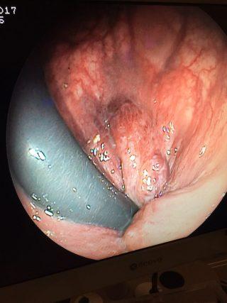 TUMORACION BENIGNA JUNTO A HERMORROIDES