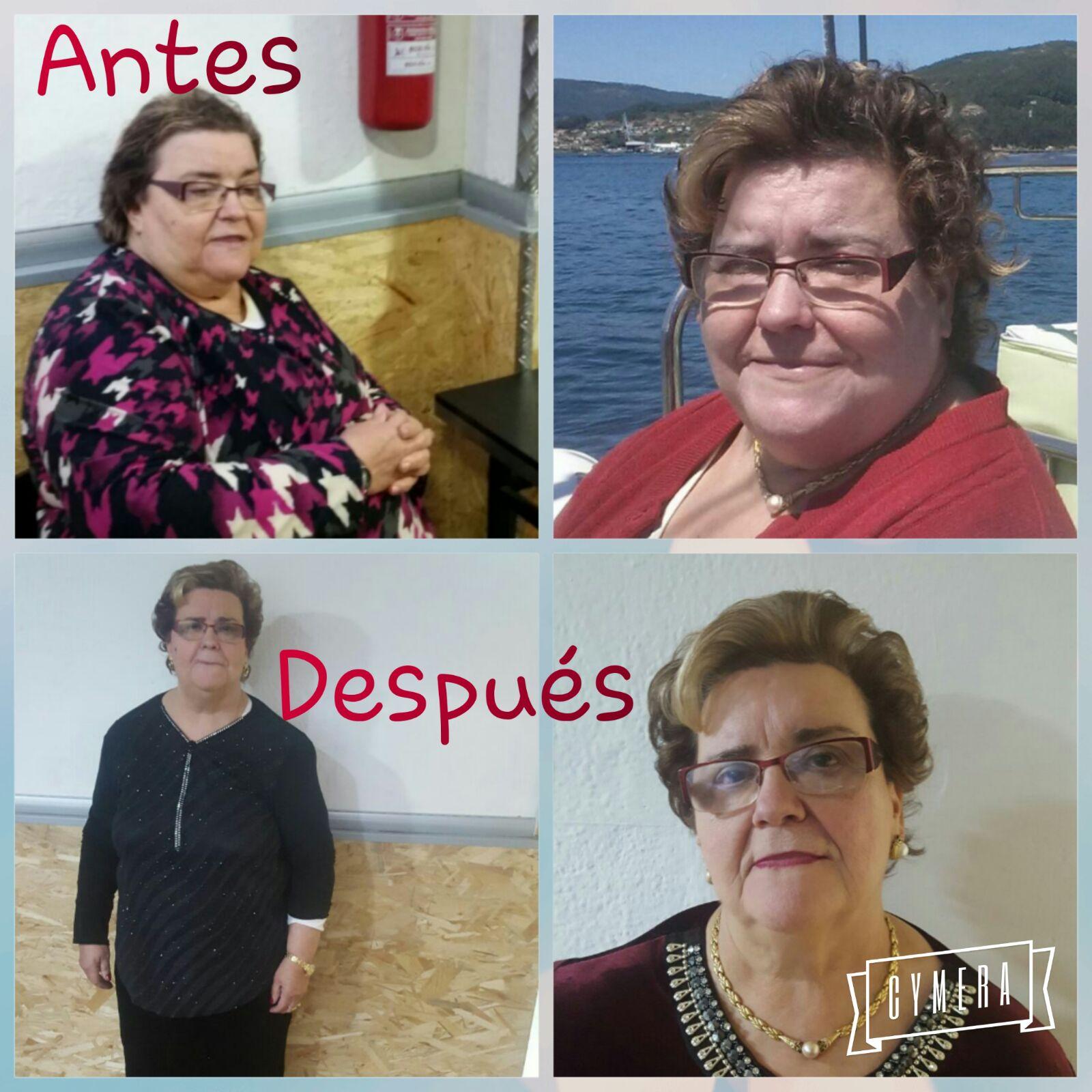 Cirugía obesidad antes y después