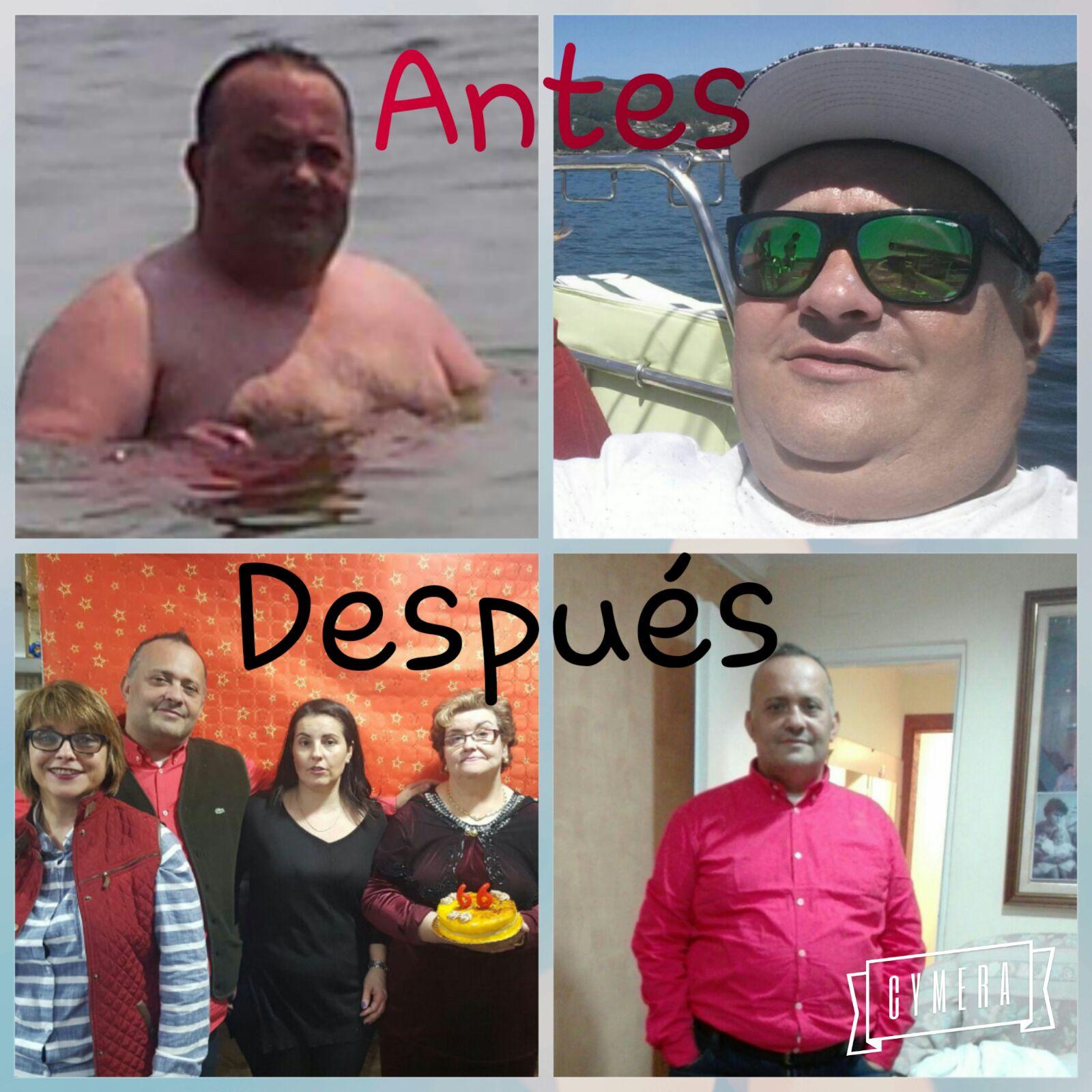 operación de obesidad
