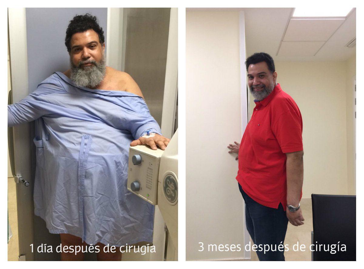 cirugia-antes-y-después-1200x888.jpg
