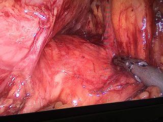 Pancreas sano con pseudoquiste al fondo.