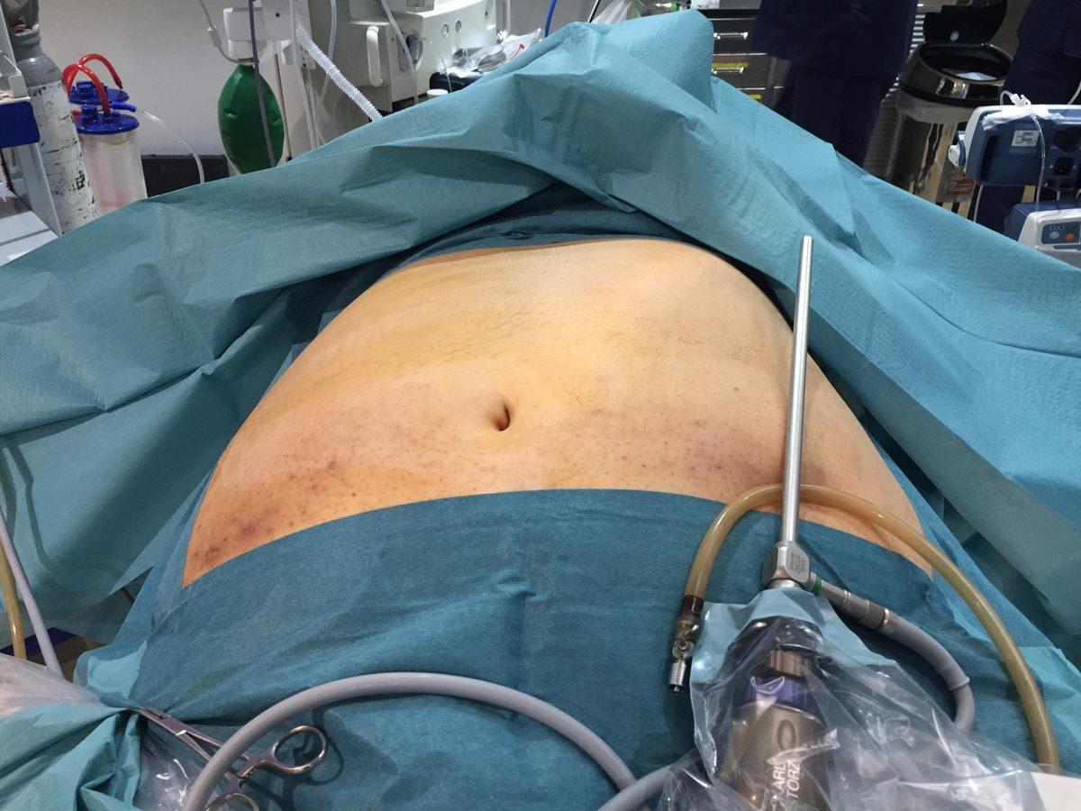 Paciente preparado para realizar la cirugía