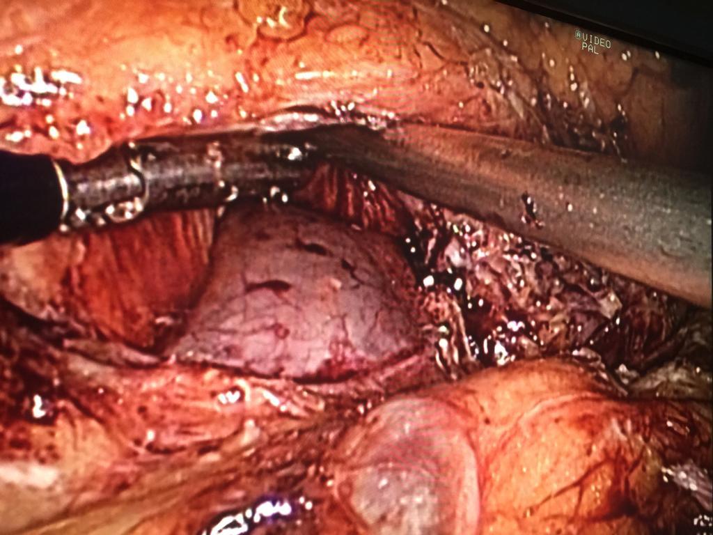 Disección de la vena porta y Ligadura de la esplenica