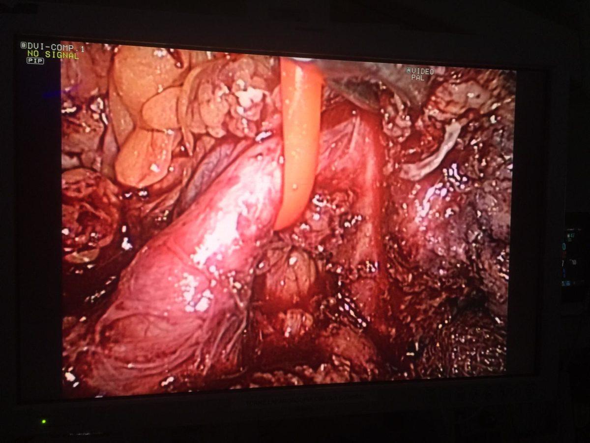 Disección y limpieza de ganglios de la arteria esplenica antes de seccionarla