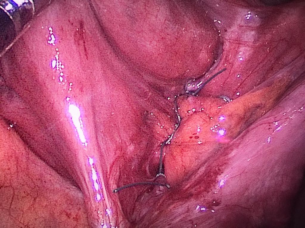 ciruria-revision-sutura-cierre-mesos.jpg